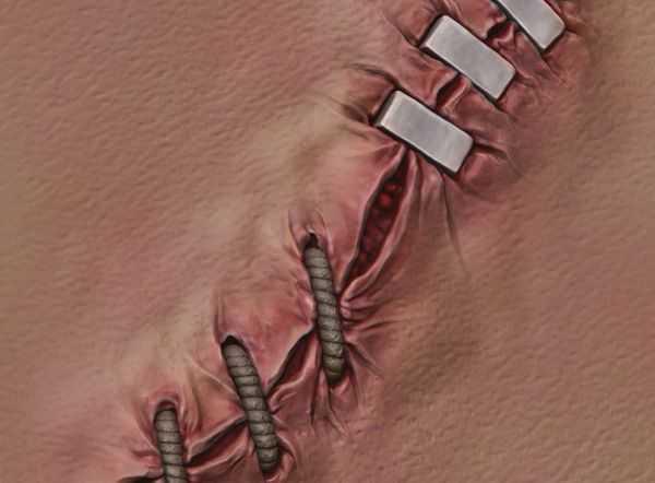 как выглядят швы после операции
