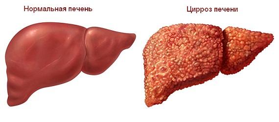 здоровая печень и печень при циррозе