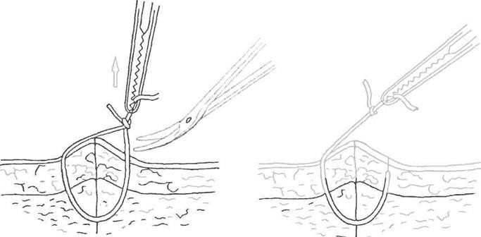 вытягивание нити операционного шва