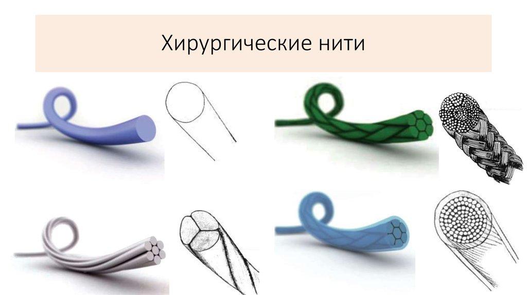 Типы хирургических нитей