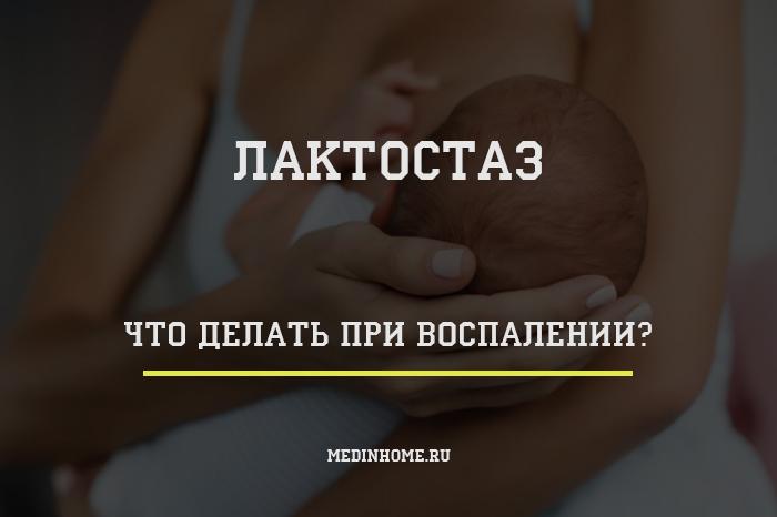 статья о действиях при лактостазе