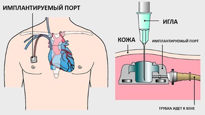 Имплантация порт-системы. Как выбрать?